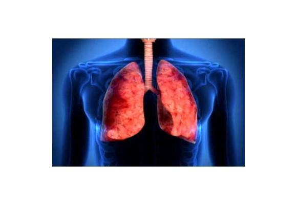 Pľúcne chlamýdie od A po Z